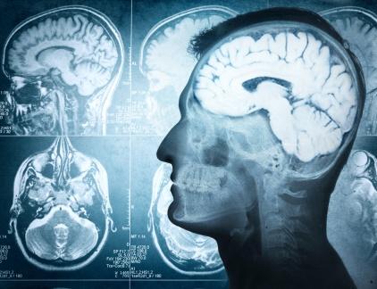 「反社會人格」和「心理變態」的差異?│腦神經科學家研究結果