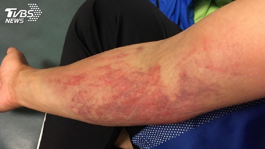 圖/中央社 許淑淨肌肉韌帶撕裂傷 教練:很嚴重