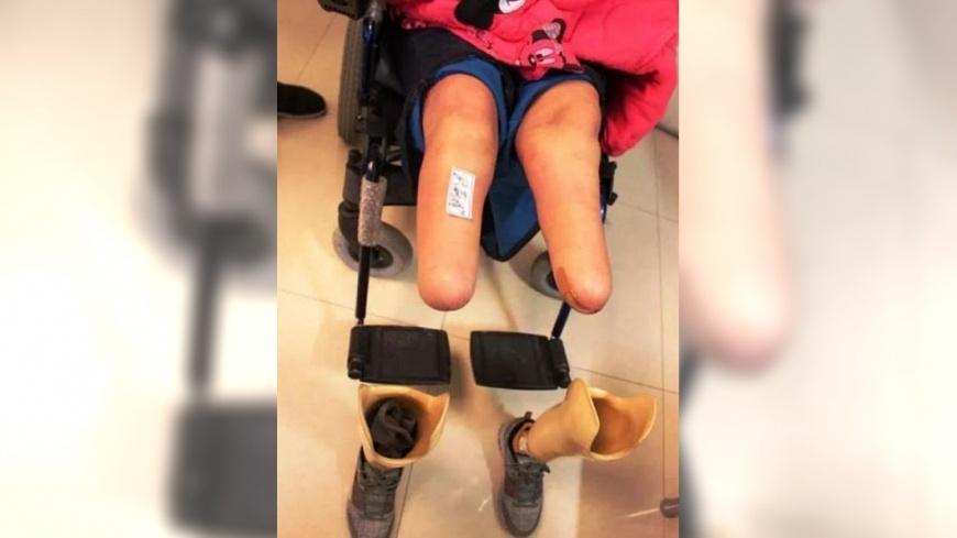 大陸一名少女遭人性侵昏迷,警方到場誤認是屍體沒處理,事後少女因此失明凍傷,雙腿遭到截肢。(圖/翻攝自網易) 高二女遭性侵昏迷 警誤認「屍體」棄路邊害失明截肢