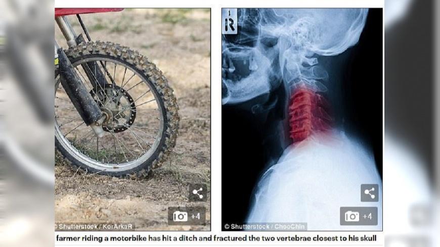 澳洲一名老農夫騎車摔斷脖子,他用頭髮固定頸部後再就醫,所幸並無大礙。(圖/翻攝自每日郵報) 巡農場摔斷脖子 翁「頭髮固定頸」騎車回家求救