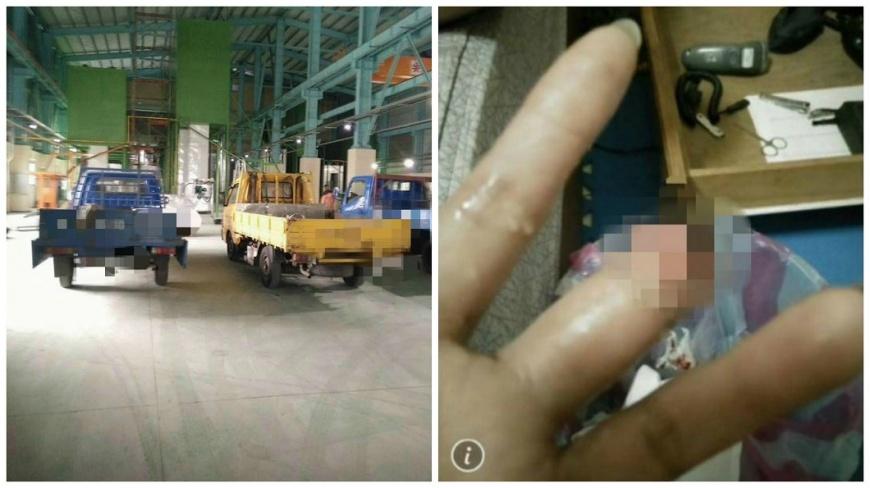 女網友因為工作受傷導致左手中指被截肢,不料公司竟想資遣她。(圖/翻攝自爆料公社) 女工作受傷截肢!團保只賠5千 公司想資遣還嗆:小事