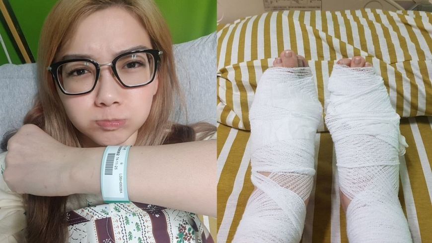 圖/臉書 邵庭 邵庭「痛到骨裡」住院開刀 雙腳纏紗布惹心疼