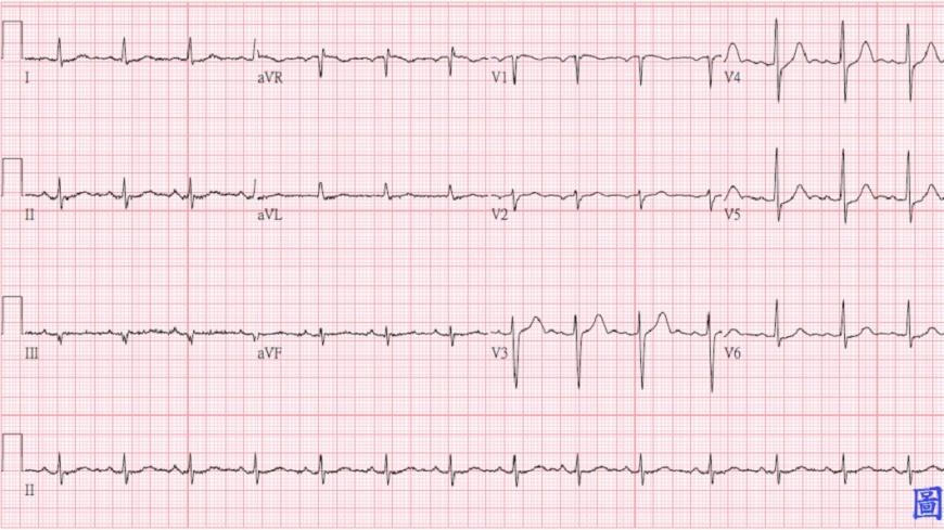 治療後,邱男心電圖顯示正常的狀態。圖/台北慈濟醫院提供