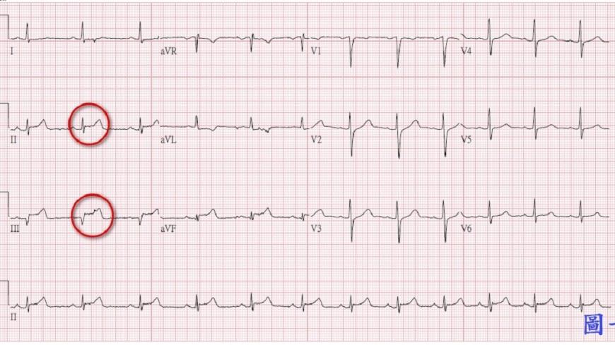 邱男送醫時心電圖顯示為急性心肌梗塞。圖/台北慈濟醫院提供
