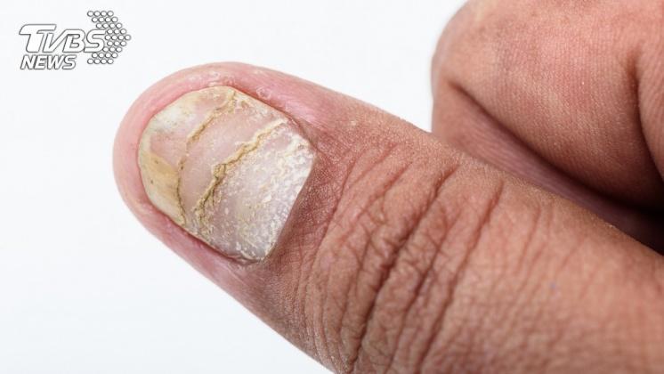指甲變薄是很多人都容易忽略的貧血症狀。示意圖/TVBS