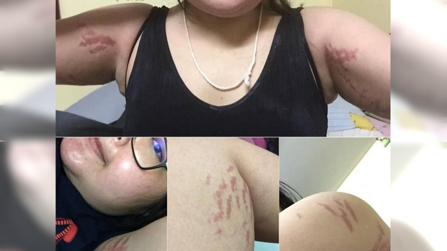 Boonyawee Payung治療後所留下的痕跡。圖/翻攝自Boonyawee Payung臉書