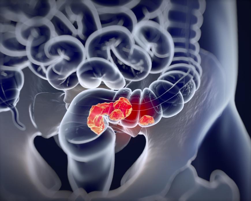 大腸癌人數逐年提升 飲食與生活習慣是關鍵