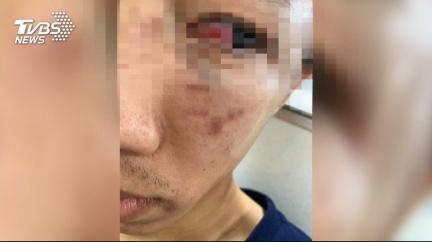 圖/TVBS 國五上被攔車 駕駛遭爆打眼睛出血全身傷