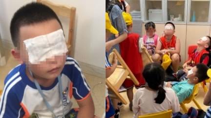 「紫外線燈」狂照5小時 130學生眼睛灼傷、角膜脫落