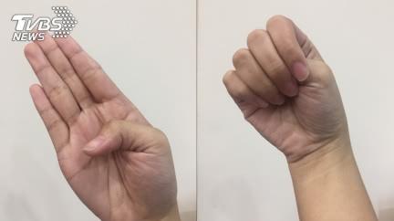 伸手1秒測「主動脈剝離」高危險群 醫曝:心像被撕裂