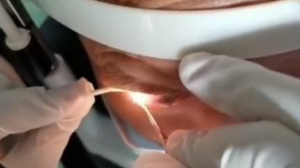 6旬男「雙眼夾出20活蟲」 長條狀白蟲寄生眼球1年
