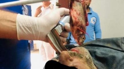 漁夫把活魚含嘴裡 牠掙扎游向喉嚨整條卡死