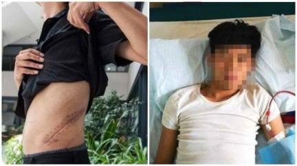 男17歲賣腎買iPhone 9年後下場曝:終身洗腎
