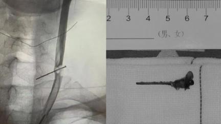 男眼前發黑急就醫 驚見「3公分鐵釘」穿頸動脈10年