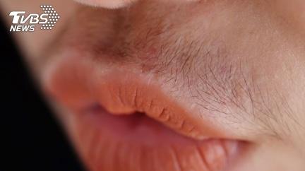 20童胃痛服藥「全身炸毛」 終生難癒家長氣壞