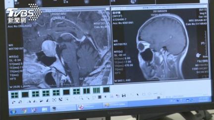 輕忽「這幾個症狀」 醫師:小心「腦瘤」找上你