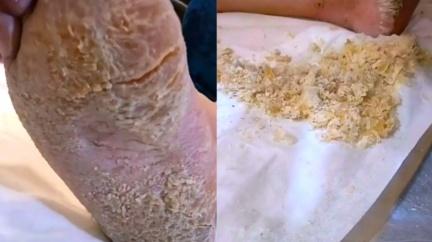老廢腳皮厚到龜裂成「起司屑」 網嚇:怎麼長這樣?