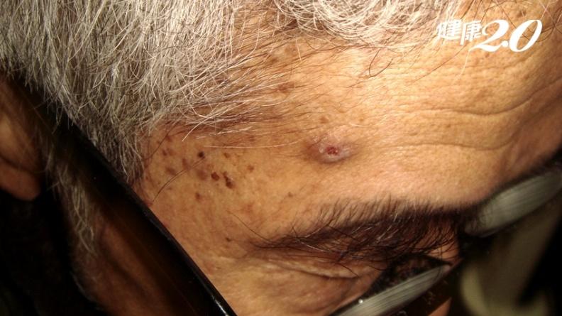 這不是老人斑!日光性角化症是皮膚癌前病變