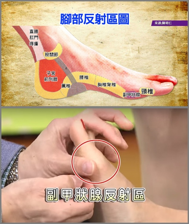 拇趾外翻也會遺傳!專家教你按「腳底反射區」改善