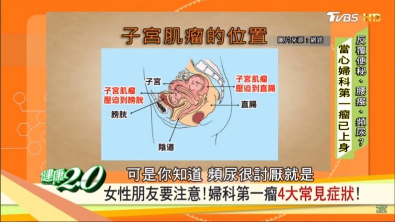 腰痠、便袐、頻尿  竟是子宮肌瘤在作怪!