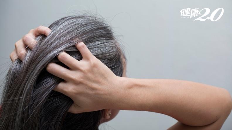 年紀輕輕一頭白髮?  4大健康警訊、1關鍵原因!