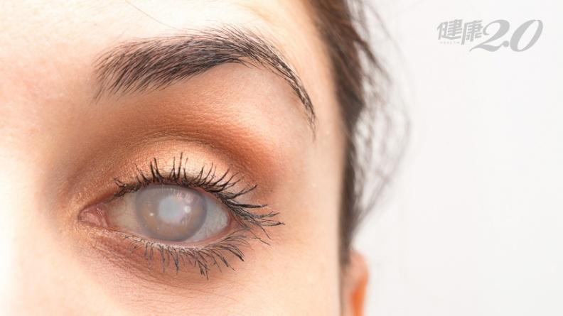 台灣之光!菌血症也能捐眼角膜,台大打破全球迷思