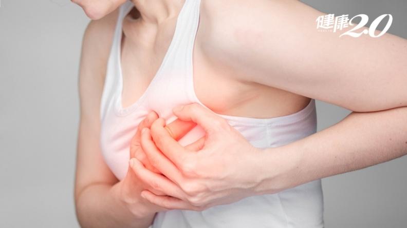 不只哺乳媽!10大族群也易得乳腺炎,醫教3招預防很簡單