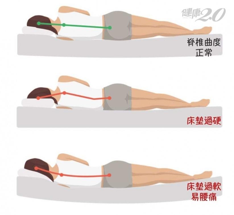 一覺醒來腰痠又背痛?復健科醫師:你的床墊有問題!