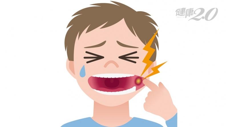 口腔潰瘍是腸病毒?2大重點快速分辨