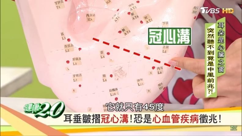 吳明珠:耳垂上有「2大徵兆」,可能是心臟出問題!