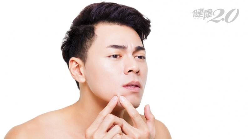 毛孔粗大老是粉刺、痘痘冒不停?「這原因」造成外油內乾,做好1招就能改善