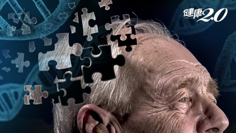 阿茲海默症治療現曙光!成大研發「Z小分子蛋白」,恢復腦神經細胞