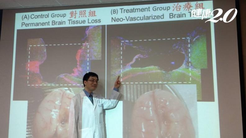 細胞治療可修復腦神經  改善中風癱瘓、失語後遺症!