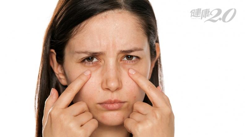1招測微血管健康!黑斑、眼屎多、口臭、健忘...,原來是微血管劣化造成