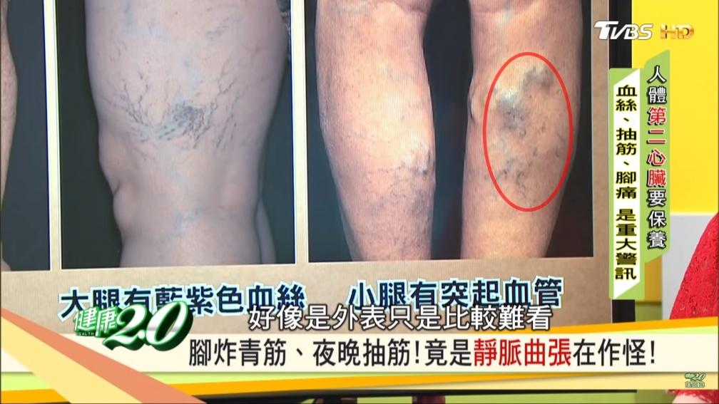 下半身水腫或發福?一招教你分辨 當心小腿血管「長這樣」有致命危險