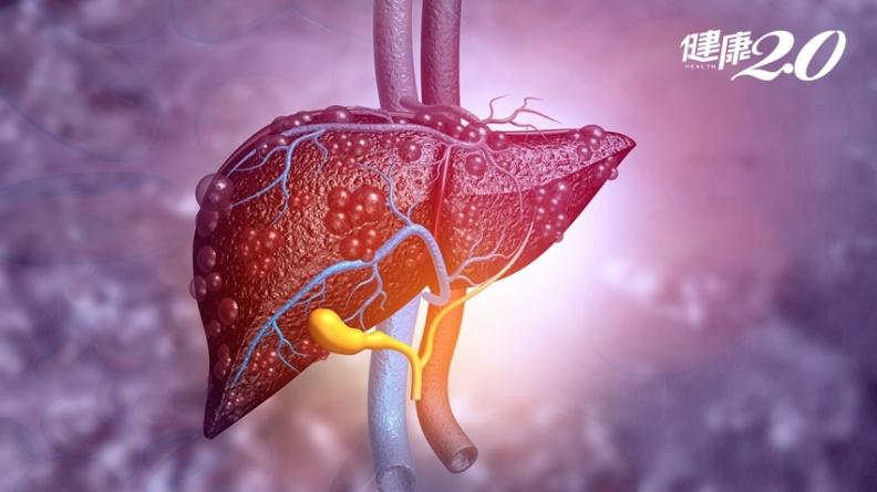 肝癌免手術也可治癒!「先塞後燒」治療,婦人2公分腫瘤消失