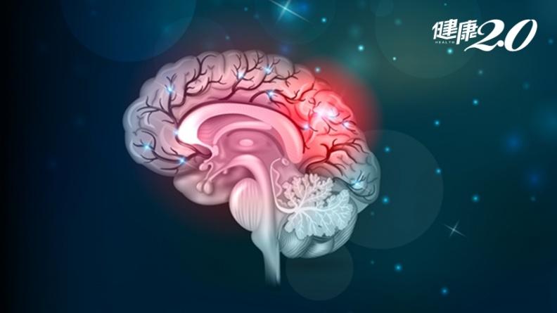 精神疾病會遺傳嗎?每天都要服藥?台大醫師破解2大迷思