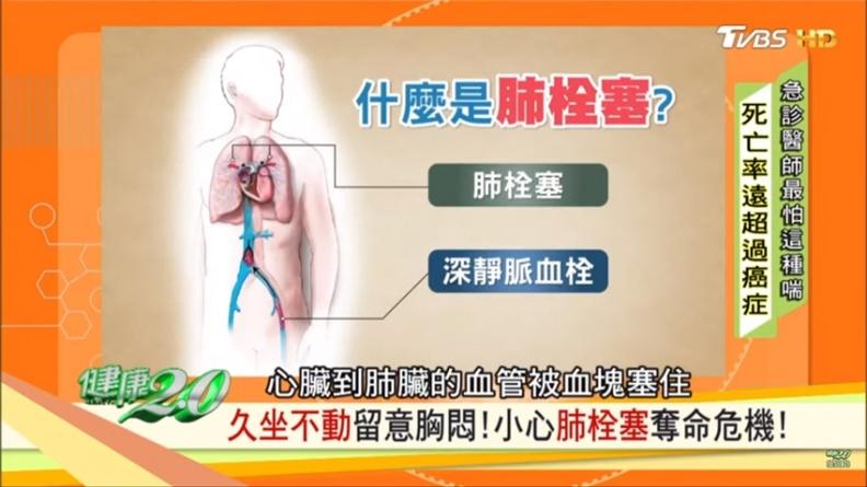 胃潰瘍也會胸悶、易喘!江坤俊:這4種胸悶最致命