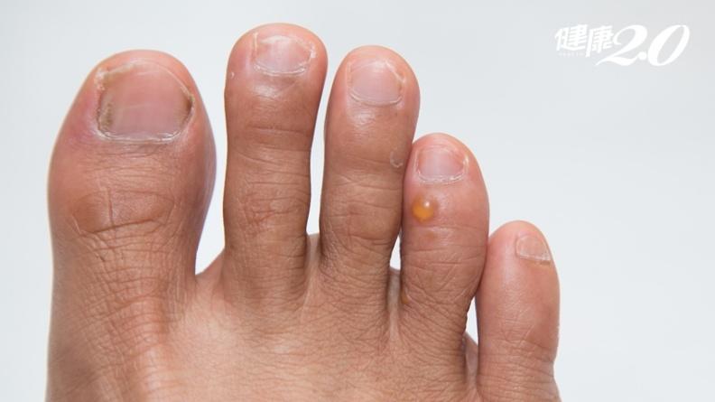 汗皰疹奇癢無比 皮膚科醫:少碰「鎳鈷鉻」食物!