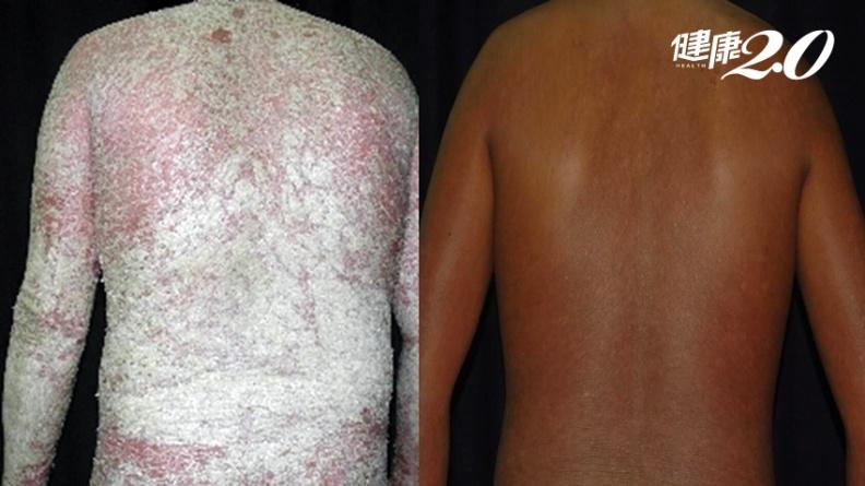 乾癬病患沉重告白:發病身體滿是傷口 洗澡如刀割、火燒像煉獄