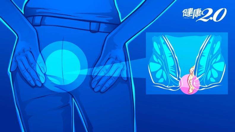 痔瘡需要開刀嗎?醫師曝「用手推回」才要 4招預防免開刀