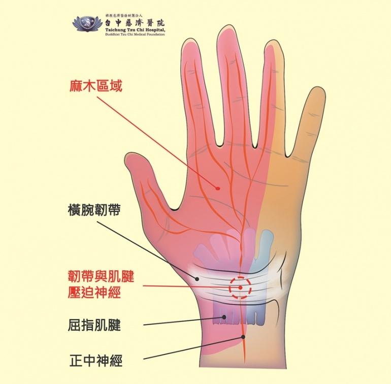 手麻甩一甩就沒事?腕隧道症候群不吃藥、不手術首選治療是它!