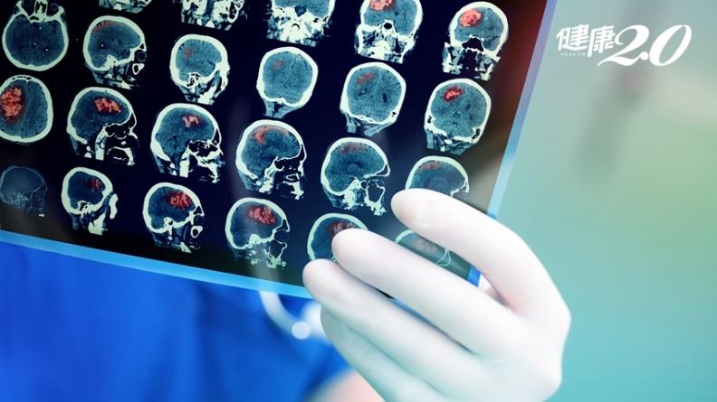 感冒3天沒好當心是腦癌?陽明破解關鍵致病機轉