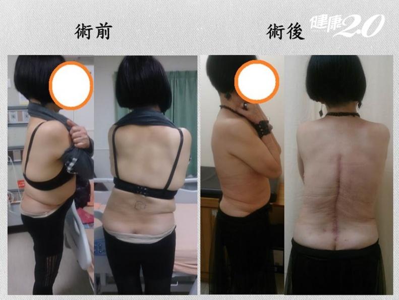她脊椎側彎痛10年、吞止痛藥無效!截骨手術不再痛還長高了