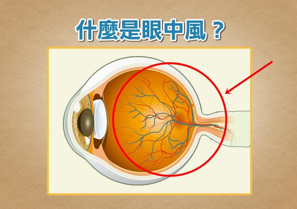 眼睛爆血管就是眼中風?出現這症狀,90分鐘內恐失明