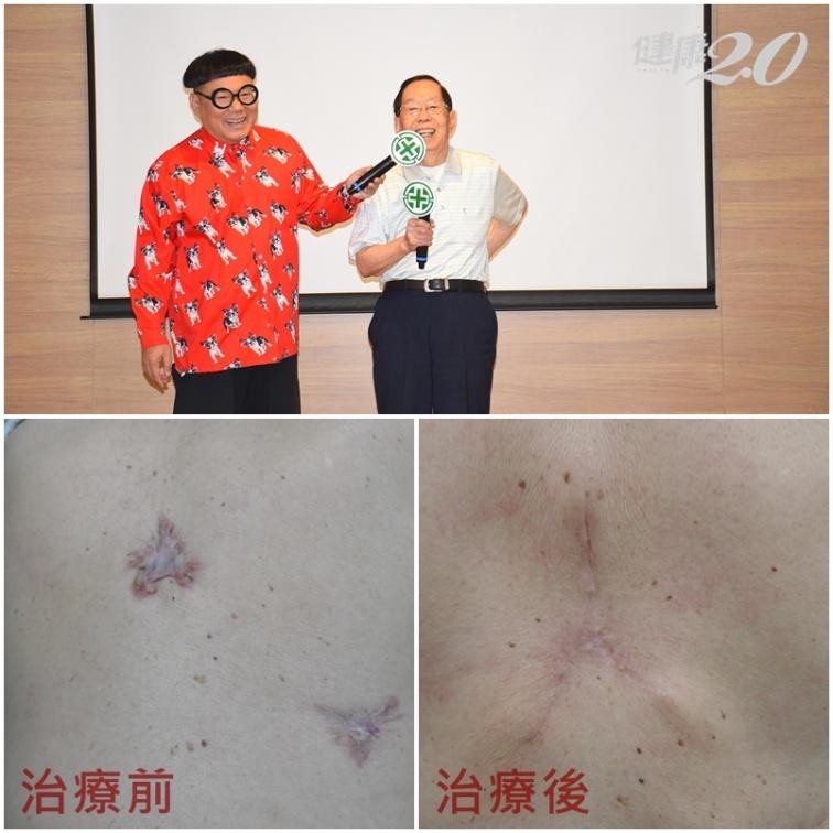 長痘痘也可能釀成蟹足腫!預防蟹足腫復發 醫師除疤有方法