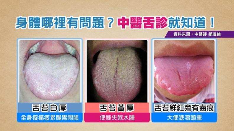身體哪裡有問題?3種舌苔顏色不健康!