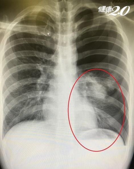 胸口突然刺痛怎麼回事?不一定是心臟問題 「身材瘦高」要注意!