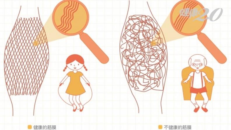 慢性病、疼痛、關節退化 可能都是「筋膜沾黏」!