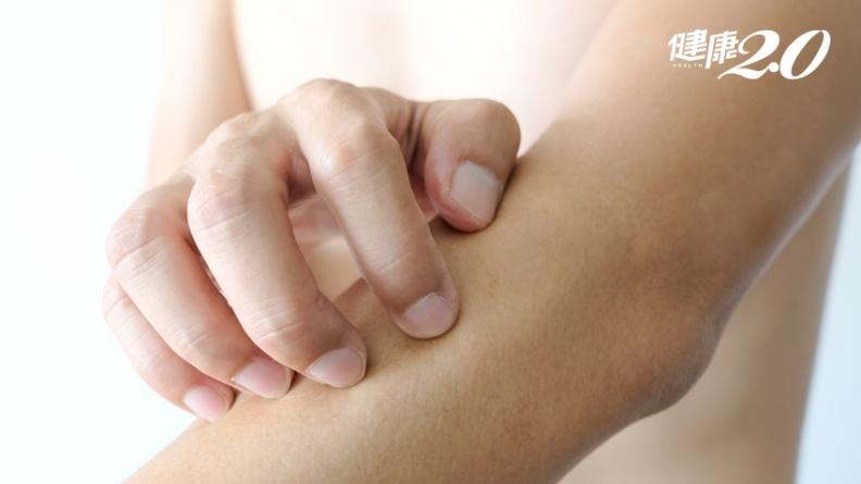 異位性皮膚炎老發作?夏天做好5招免越抓越癢